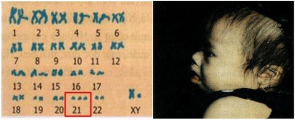 Lý thuyết Sinh học 9 Bài 29: Bệnh và tật di truyền ở người hay, chi tiết